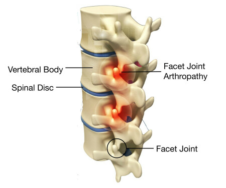 Facet Joint Syndrome - Health Plus Chiropractic