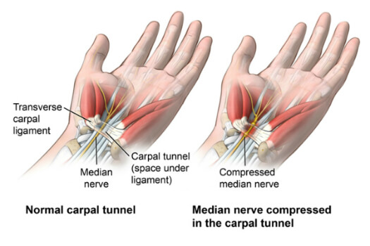 Informational - Carpal Tunnel Syndrome - Comparison