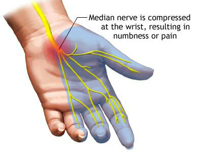 Informational - Carpal Tunnel Syndrome - Symptoms