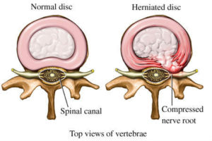 Informational - Herniated Disc - Health Plus Chiropractic & Acupuncture