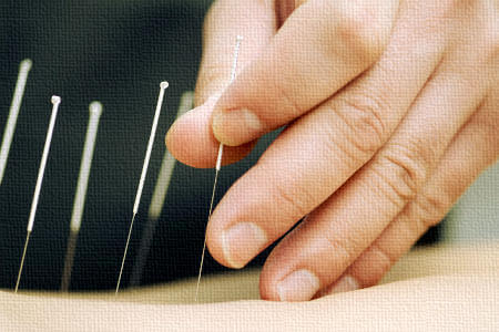 Services-Acupuncture-Health-Plus-Chiropractic-Acupuncture-450x300